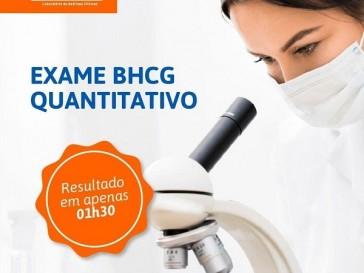 Beta HCG QUANTITATIVO é um exame para quem está desconfiando de uma gravidez